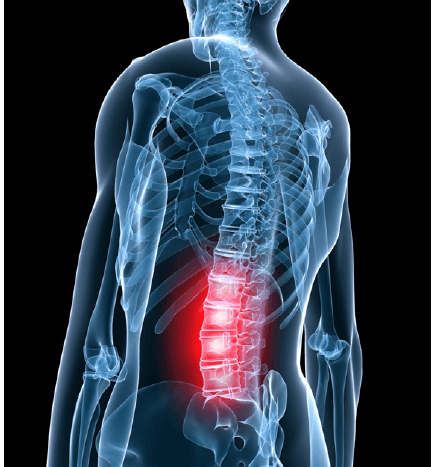 lowbackpain  oahu spine  rehab