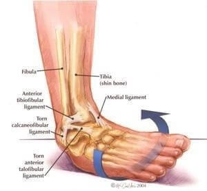 Ankle insability