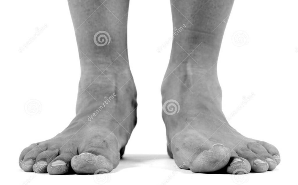 how to build arches in flat feet