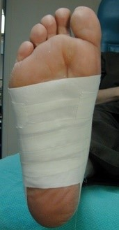 flatfoot2