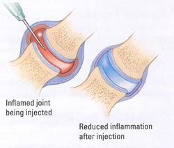 http://www.swspineandsports.com/pain-diagnosis-treatments/treatments-procedures/facet-joint-injections/
