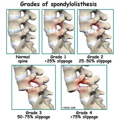spine3
