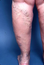Picture of back of leg with varicose vein